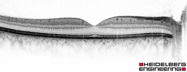 OCT (Optische Kohärenz- Tomografie)