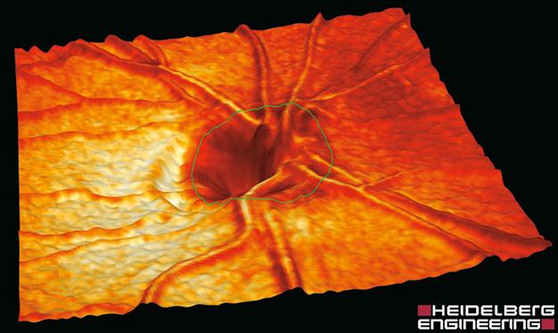 HRT (Heidelberg Retina Tomograph)